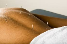 How Acupuncture Reduces Pain